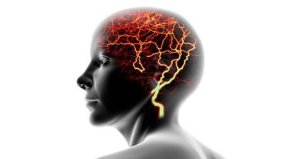 epilepsie